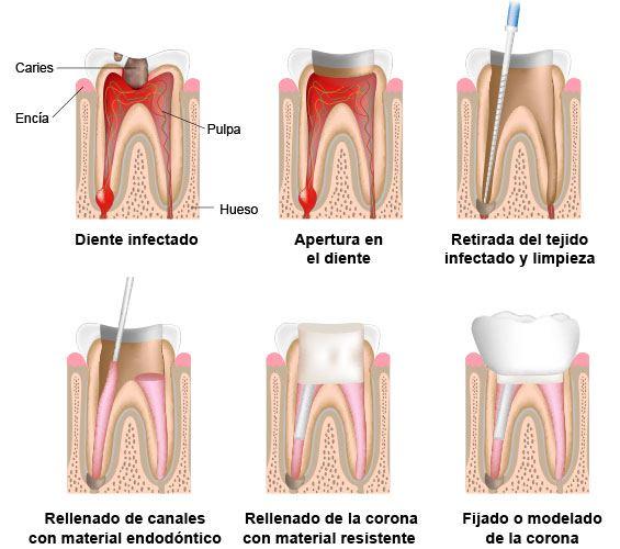 endodoncia-2