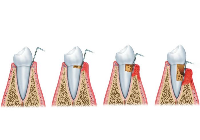 periodoncia-2